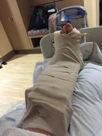 the leg I woke up to